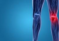 gonartrosi sistema protesi
