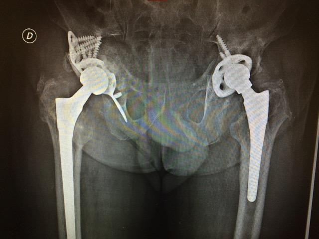 2 sistema protesi