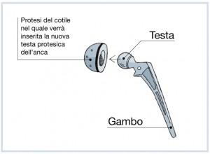 COTILE1 sistema protesi