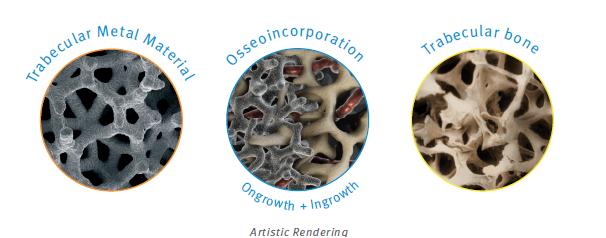 tantalio- sistema protesi