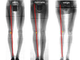 dolore anteriore del ginocchio