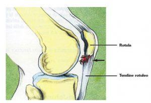 tendinopatia del tendine rotuleo - dolore anteriore del ginocchio