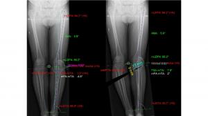 Lastra intervento di osteotomia - Sistema protesi